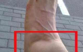 Артроз голеностопного сустава (голеностопа): симптомы и лечение, причины, описание болезни