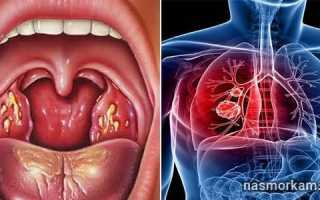 Болит шея ниже кадыка при нажатии
