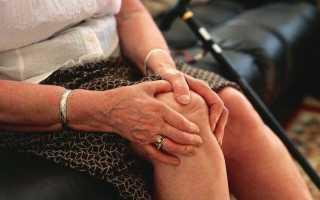 Первая степень артроза тазобедренного сустава: симптомы, диагностика и лечение