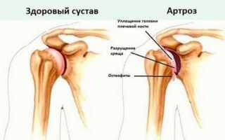 Как правильно сделать укол в плечо внутримышечно видео