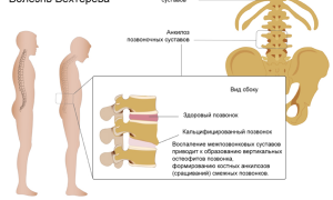 Болезнь бехтерева: симптомы, лечение, у женщин и мужчин