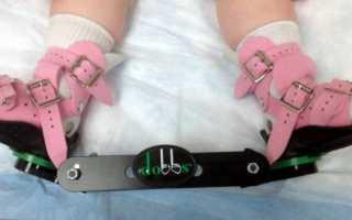 Антивальгусная ортопедическая обувь для детей
