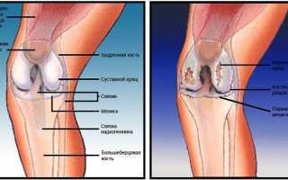 Из-за чего на колене может появиться шишка?