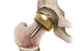 Перелом шейки бедра тазобедренного сустава: виды, лечение пожилых и последствия операции