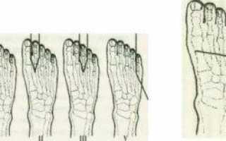 Экзартикуляция и ампутации пальца на диабетической стопе