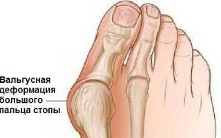 Обувь барука после операции по удалению косточки на ноге