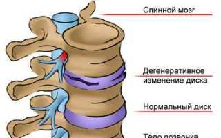 20 минут против остеохондроза шейно грудной 2ая часть