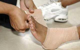 Разрыв связок: симптомы, диагностика и лечение