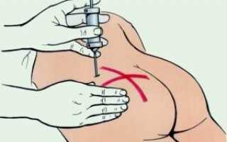 Как сделать подкожную инъекцию самому себе?