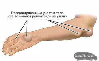 Что такое артрит коленного сустава у детей и как его лечить?