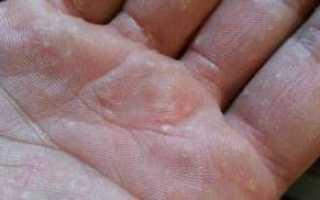 Почему на пальцах рук появляются пузырьки?