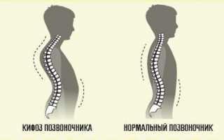 Спондилоартроз шейного отдела позвоночника чем опасен