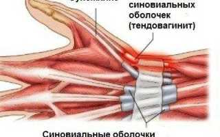 Лечение кисти руки при тендовагините сухожилий