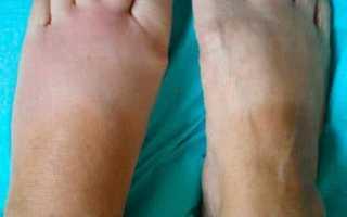 Что можно сделать на последней стадии полиостеоартроза