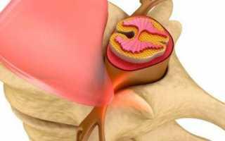 Боли в квадратной мышце поясницы: причины, симптомы, лечение