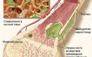 Боли в стопе: причины и лечение