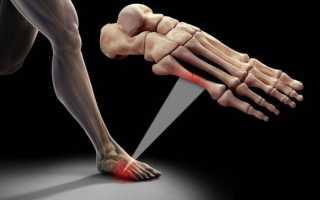 Как правильно бинтовать большой палец на руке при переломе