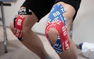 Как выполняется тейпирование коленного сустава при артрозе