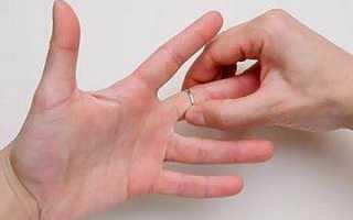 Отек сустав на пальце руки как избавиться в домашних условиях