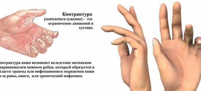 Контрактура — это что? контрактура мышц: диагностика, лечение