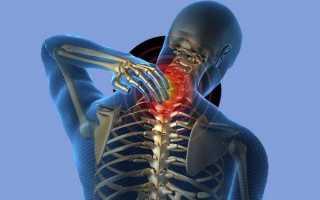 Синдром фиксированного спинного мозга последствия