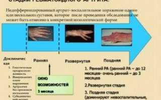 Определение, симптомы и лечение недифференцированного артрита