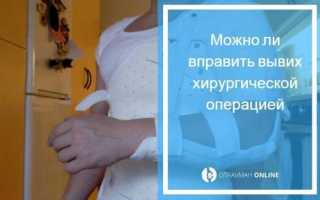 Последствия вывиха плеча. вправление вывиха плеча