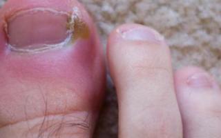 Почему посинел палец на ноге