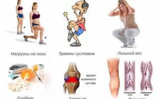 Что такое остеохондроз коленного сустава, какие степени бывают и как проходит лечение?