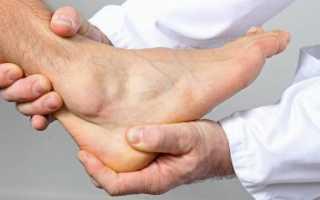 Блуждающий артрит симптомы и лечение лекарства уколы