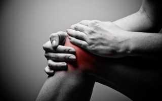 Болит колено с внутренней стороны