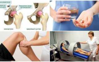 Уколы от артроза тазобедренного сустава: перечень эффективных препаратов