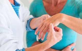 Вызов ревматолога на дом
