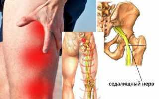Почему возникает резкая, острая боль в коленном суставе, ее особенности, лечение
