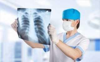 Переломы ребер. причины, симптомы, первая медицинская помощь и реабилитация