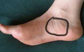 Болит подъем ноги при ходьбе сверху