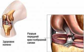 Почему в колене возникает хруст и боль, лечение и профилактика этих явлений