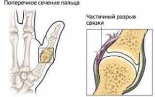 Растяжение связок руки: лечение и реабилитация