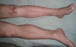 Воспаление костного мозга: возможные осложнения и способы лечения