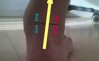Деформирующий и посттравматический артроз голеностопного сустава: симптомы и лечение