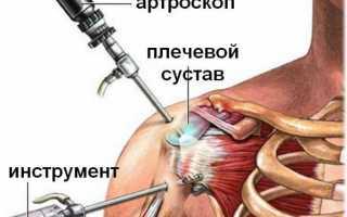 Лечение артороскопии