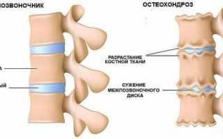 Лечение остеохондроза: какие средства эффективны?