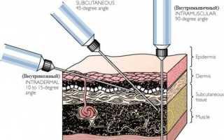 Как правильно и куда делают прививку от гриппа детям и взрослым (инструкция по технике постановки укола)