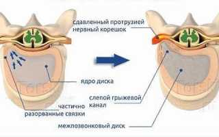 Массаж при протрузии позвоночника в поясничном отделе