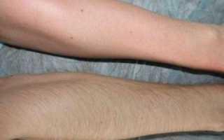 Лазерная эпиляция рук: преимущества метода и противопоказания к проведению процедуры