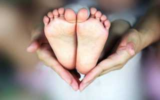 Почему малыш ходит на носочках?