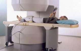 Методы лечения контрактуры коленного сустава