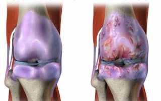 Артрит плечевого сустава: симптомы и методы лечения