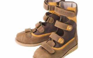 Показания для ношения антиварусной обуви для детей разных возрастов