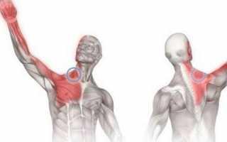 Остеохондроз плечевого сустава симптомы и лечение в домашних условиях